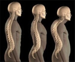 Kyphosis And Scoliosis Related Keywords & Suggestions ...